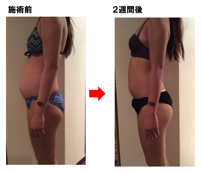 2週間後Before -After