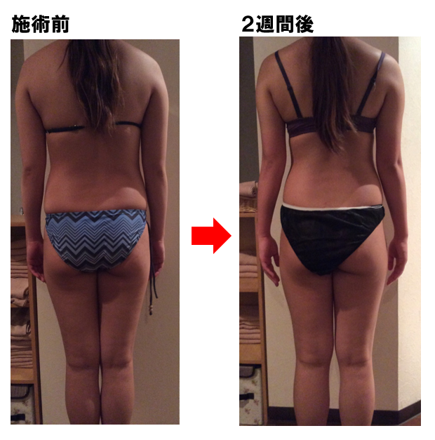2週間後Before-After2
