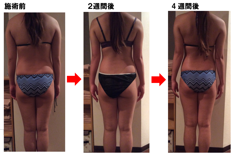 Before -After4週間後