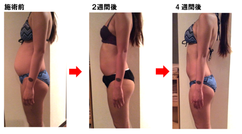Before-After24週間後